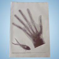 Early Skiagraph Photographic Half tone Print X Rays Roentgen Ray Images Hand Fish 1900. No. 2. No.2