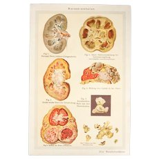 Art Nouveau Print about Human Kidney diseases - 1900's Polychrome Lithograph