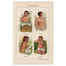 19th Century,Antique,original,color,lithograph print,Human anatomy,infections,skin rash,