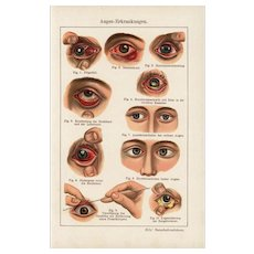 19th Century,Antique,original,color,lithograph print,Human anatomy,infections,Human Eye