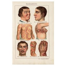 19th Century,Antique,original,color,lithograph print,Human anatomy,infections,diseases,sick people