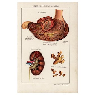 19th Century,Antique,original,color,lithograph print,Human anatomy,infections,diseases,sick people,Kidney