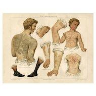 19th Century ChromoLithograph print of Human anatomy German Encyclopedia Brehms Tierleben 1887