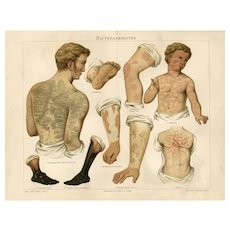 19th Century ChromoLithograph print of Human anatomy German Encyclopedia Brehms Tierleben 1887