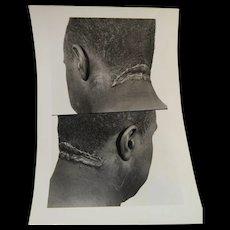 Three Medical Photographs Bronx VA Hospital 1957
