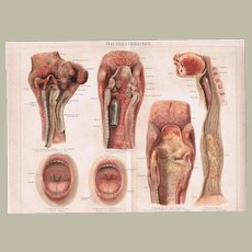 Antique Chromolithograph Diseases of the Throat 1898