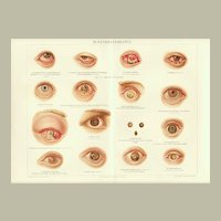 1898: Diseases of Eyes. Old Chromolithograph