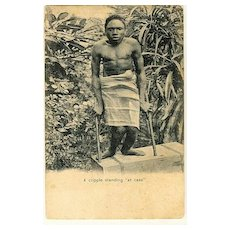 Ca. 1915: Unusual postcard, handicapped man from Asia