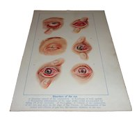 Disorders of the Eye Medical Color Plate