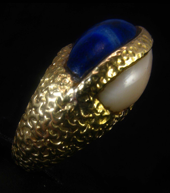 Wow 22.3 grams 18K Lapis Lazuli Angel Skin Coral Cabochon Ring