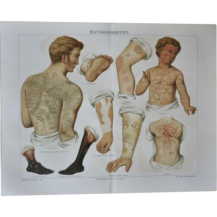 Unusual and decorative Chromo Lithograph  from 1898 Skin Diseases