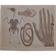 X-rays. Antique Lithograph from 1898