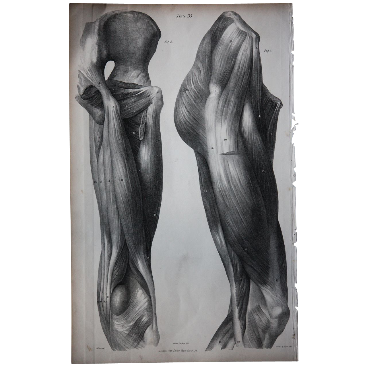 Antique Lithographic Prints (4) - Human Muscle - 19th Century Medical / Anatomy